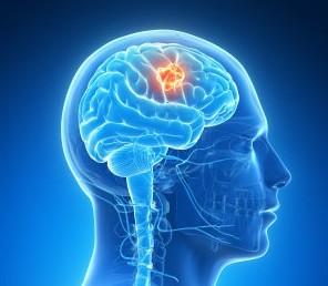 Опухоли мозга - лечение в Израиле Хирургия головного